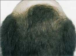 名古屋で増毛はコンドウ理容園まで